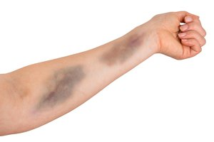 to bruise