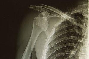 el rayo X