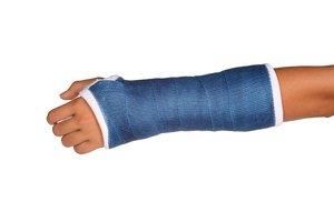me rompí el brazo