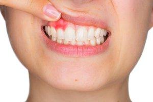 la gingivitis