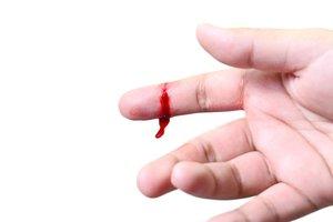 la hemorragia
