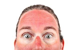 la quemadura de sol